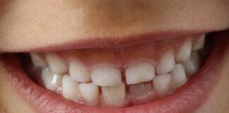 gadżety zachęcające dzieci do dbania o higienę jamy ustnej